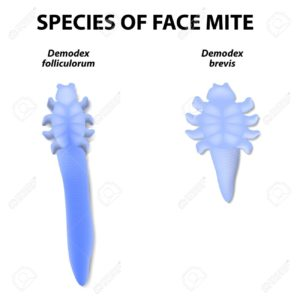 All About Demodex Mites | What Are They & How Do You Get Rid