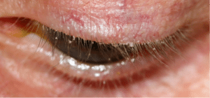 Blepharitis Home Treatment