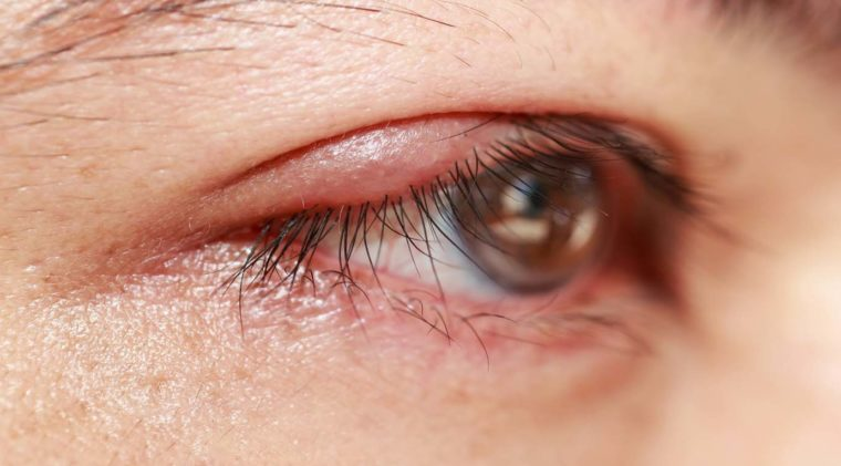What Is Anterior Blepharitis Causes Treatment Eye Love Cares