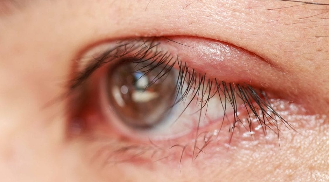 Posterior Blepharitis What Is It And To Treat It Eye Love Cares