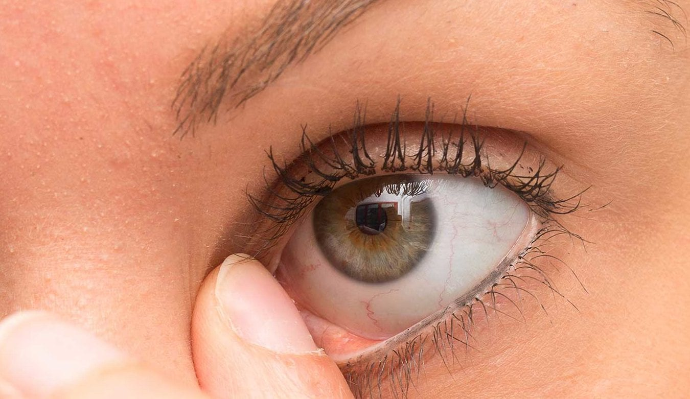 Everything You Need To Know About Demodex Blepharitis Eye Love
