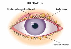 blepharitis eye drops