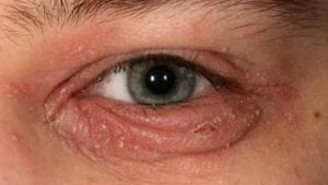 is blepharitis contagious?