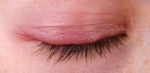 is blepharitis contagious