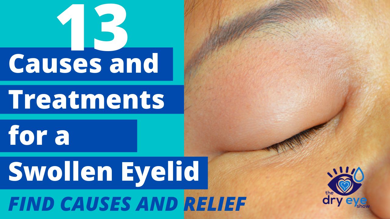 Swollen Eyelid Treatment | All-Natural Eyelid Relief and Remedy - Eye Love  Cares