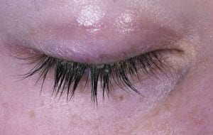 dry eyelids treatment