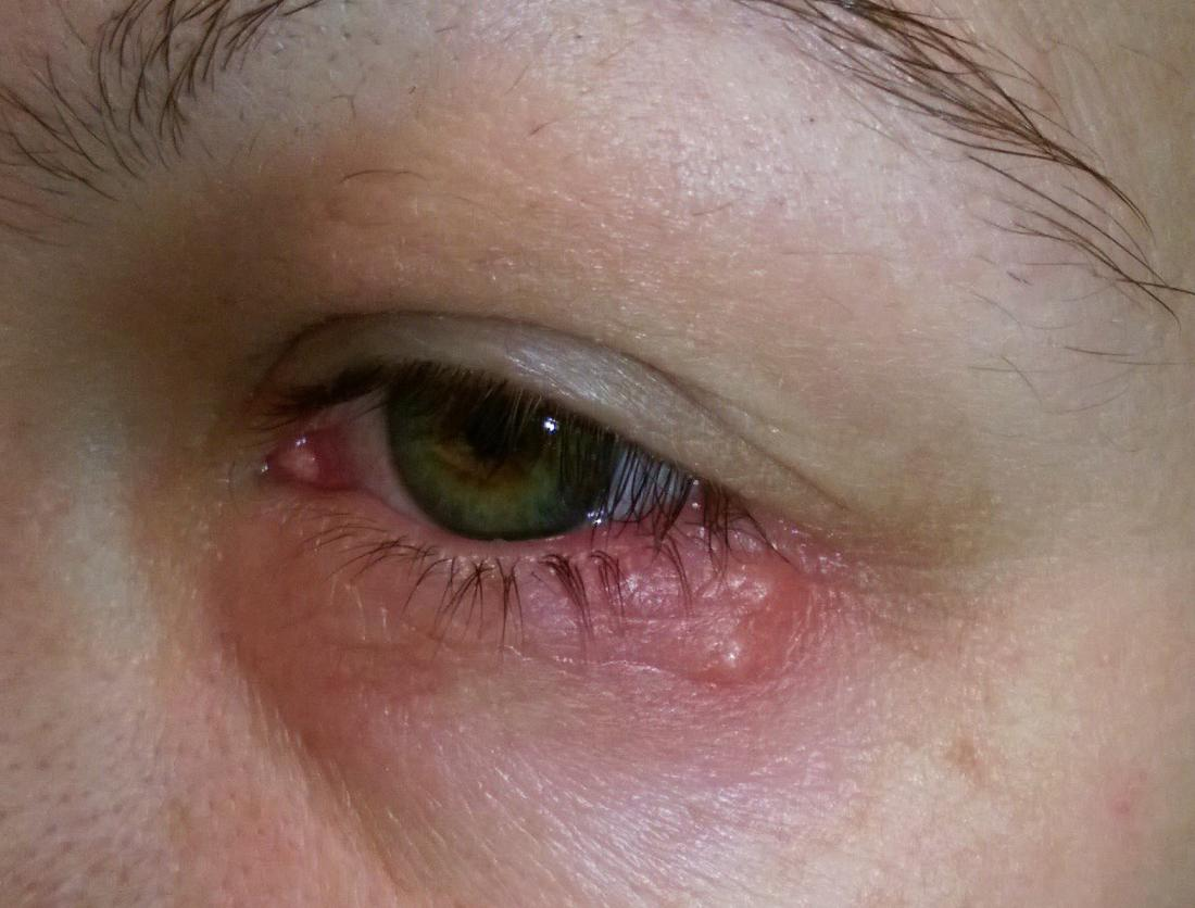 one swollen eyelid