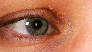 what causes a stye