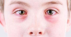 is pink eye contagious