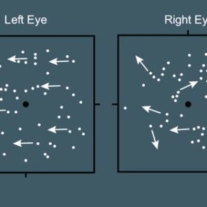dominant eye test